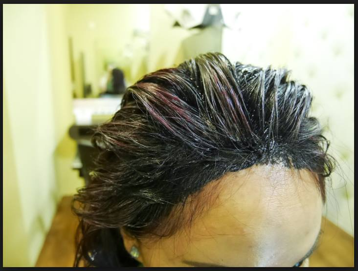 Non-Surgical Method For Hair Growth