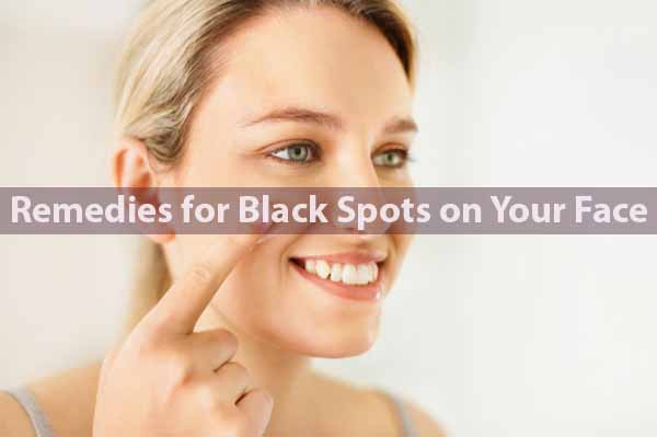 Remedies for Black Spots on Your Face – Natural Home Treatment