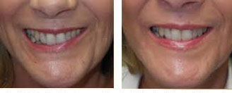 How to Fix a Crooked Smile - NLW
