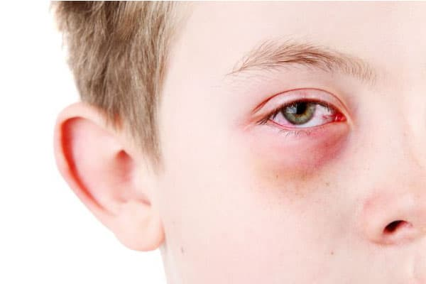 Pink Eye Breast Milk:
