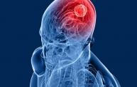 Brain Tumour Surgery in India